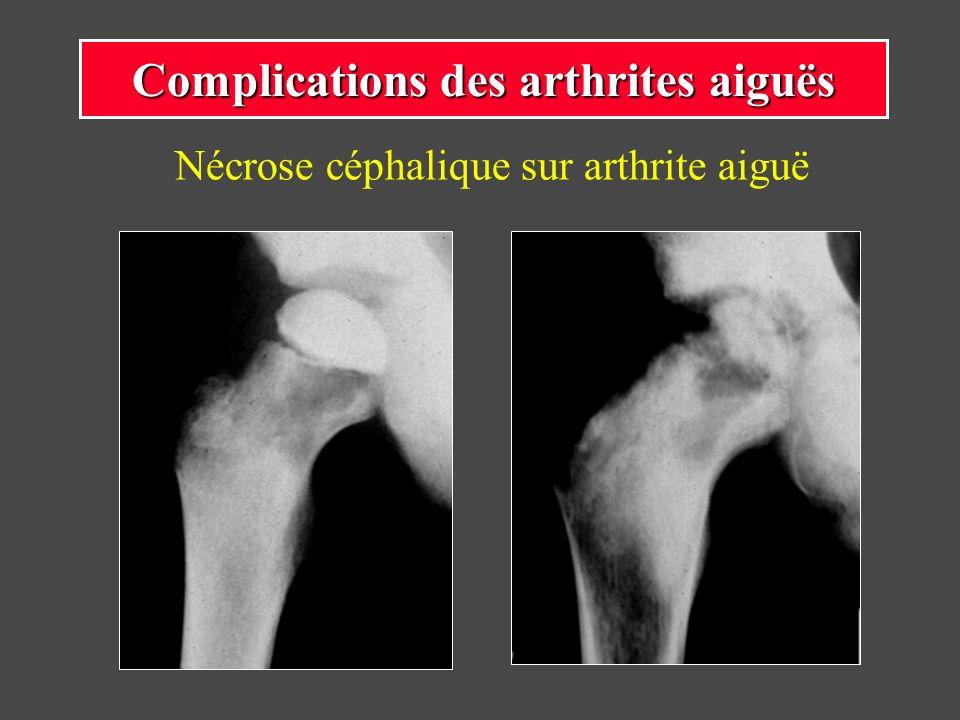 Nécrose céphalique sur arthrite aiguë Complications des arthrites aiguës