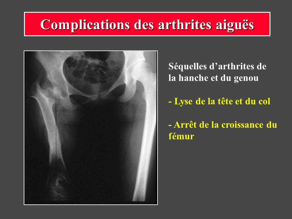 Séquelles darthrites de la hanche et du genou - Lyse de la tête et du col - Arrêt de la croissance du fémur