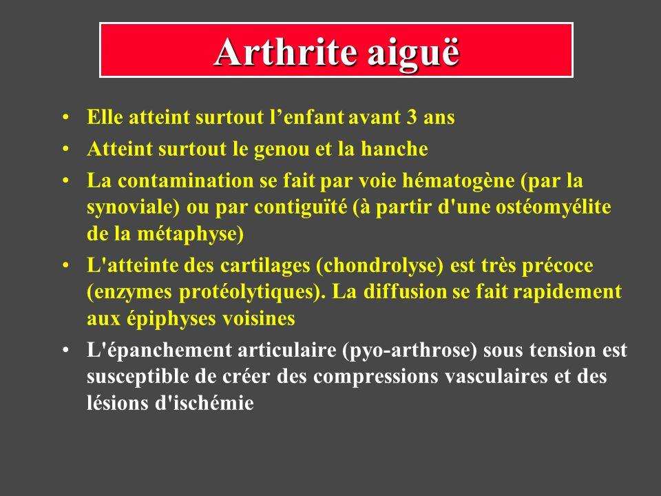Elle atteint surtout lenfant avant 3 ans Atteint surtout le genou et la hanche La contamination se fait par voie hématogène (par la synoviale) ou par
