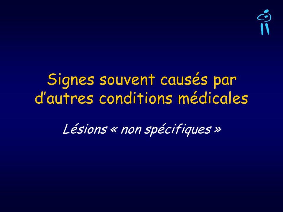 Signes souvent causés par dautres conditions médicales Lésions « non spécifiques »