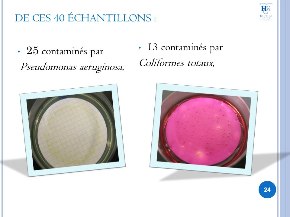 DE CES 40 ÉCHANTILLONS : 25 contaminés par Pseudomonas aeruginosa, 13 contaminés par Coliformes totaux, 24