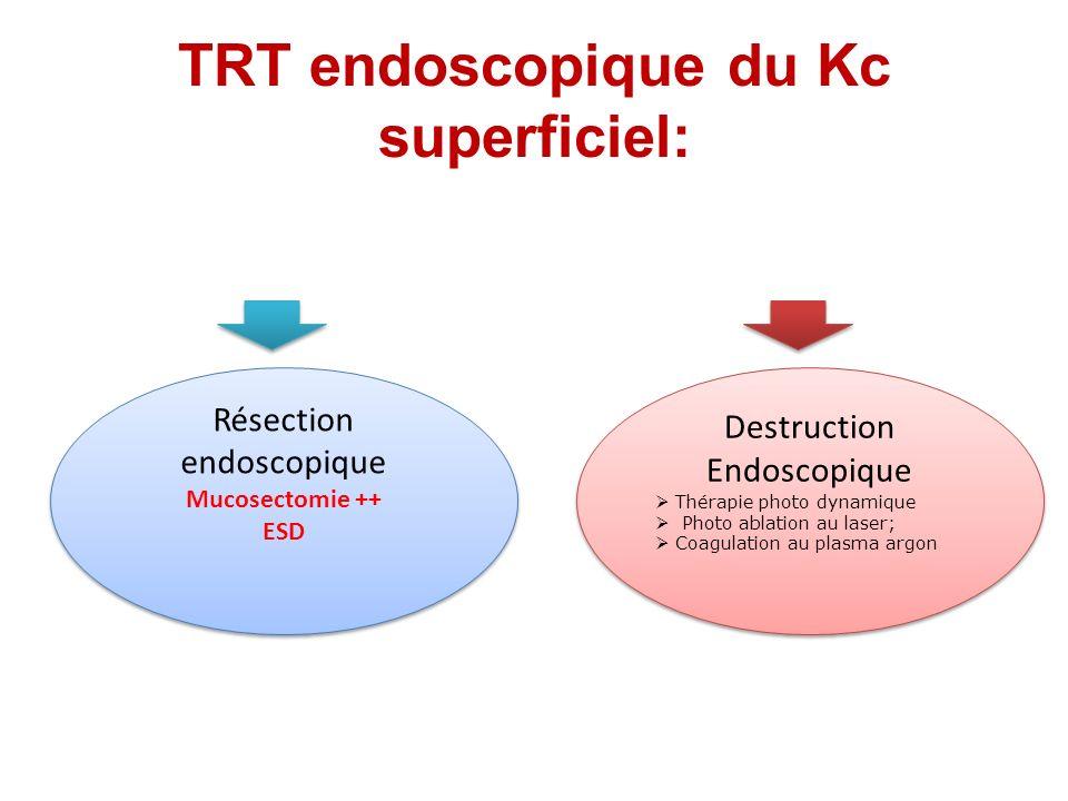 TRT endoscopique du Kc superficiel: Résection endoscopique Mucosectomie ++ ESD Résection endoscopique Mucosectomie ++ ESD Destruction Endoscopique Thé