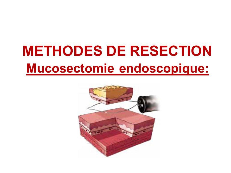 METHODES DE RESECTION Mucosectomie endoscopique: