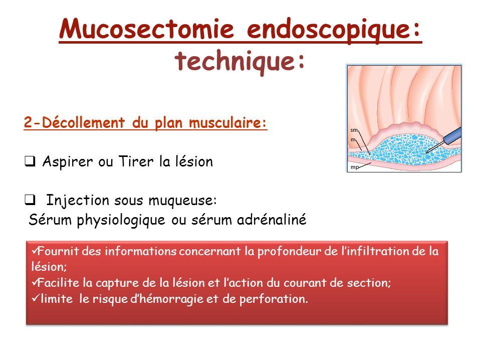 2-Décollement du plan musculaire: Aspirer ou Tirer la lésion Injection sous muqueuse: Sérum physiologique ou sérum adrénaliné Mucosectomie endoscopiqu