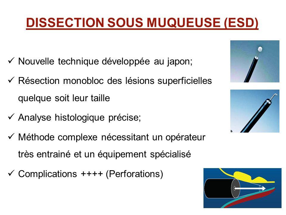 DISSECTION SOUS MUQUEUSE (ESD) Nouvelle technique développée au japon; Résection monobloc des lésions superficielles quelque soit leur taille Analyse