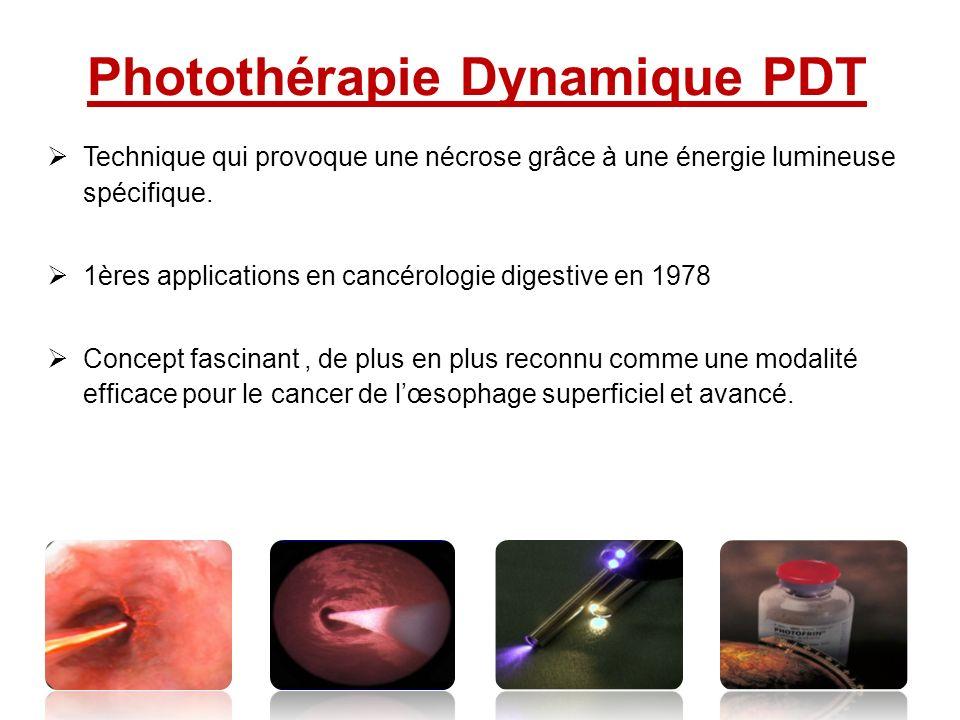 Photothérapie Dynamique PDT Technique qui provoque une nécrose grâce à une énergie lumineuse spécifique. 1ères applications en cancérologie digestive
