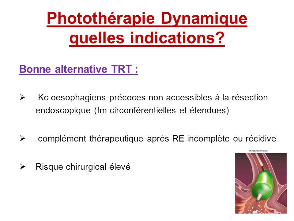 Photothérapie Dynamique quelles indications? Bonne alternative TRT : Kc oesophagiens précoces non accessibles à la résection endoscopique (tm circonfé