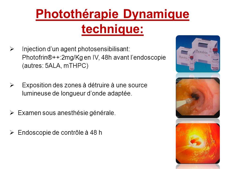 Photothérapie Dynamique technique: Injection dun agent photosensibilisant: Photofrin®++:2mg/Kg en IV, 48h avant lendoscopie (autres: 5ALA, mTHPC) Expo