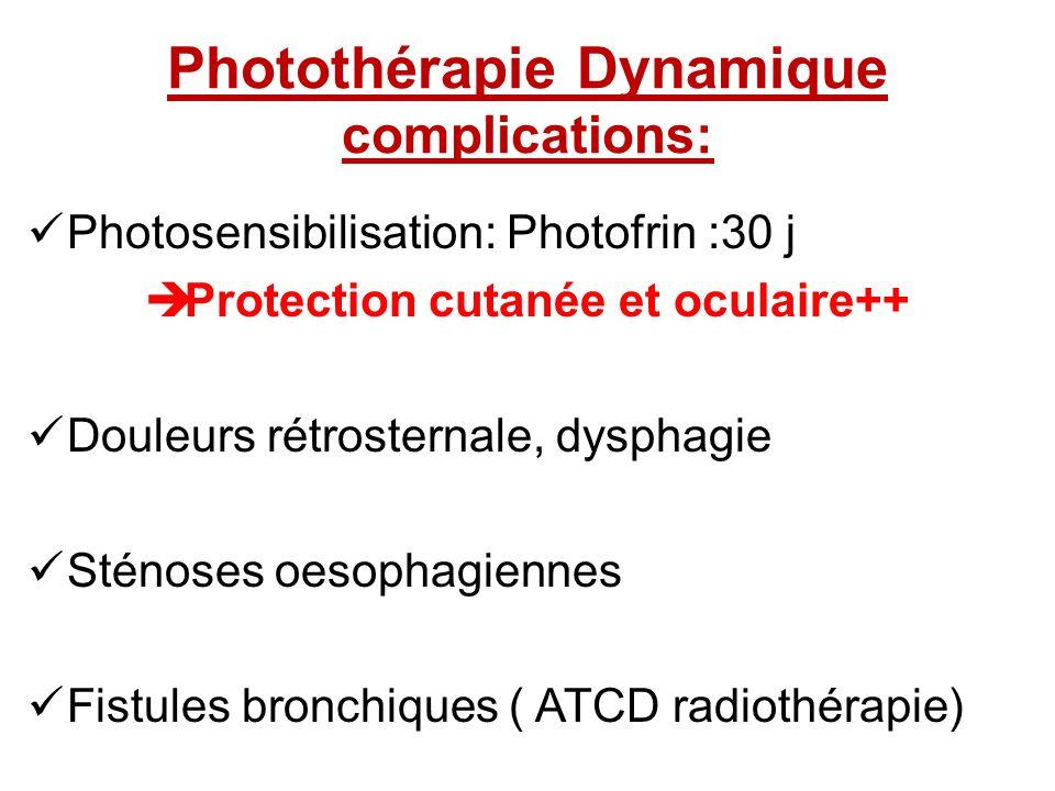 Photothérapie Dynamique complications: Photosensibilisation: Photofrin :30 j Protection cutanée et oculaire++ Douleurs rétrosternale, dysphagie Sténos