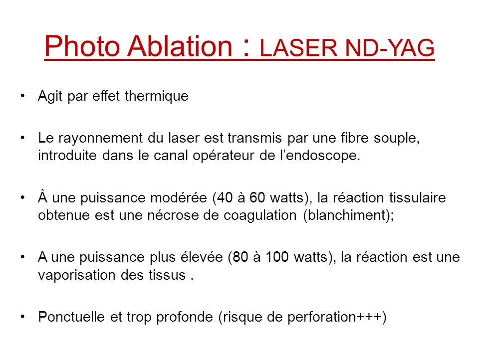 Photo Ablation : LASER ND-YAG Agit par effet thermique Le rayonnement du laser est transmis par une fibre souple, introduite dans le canal opérateur d