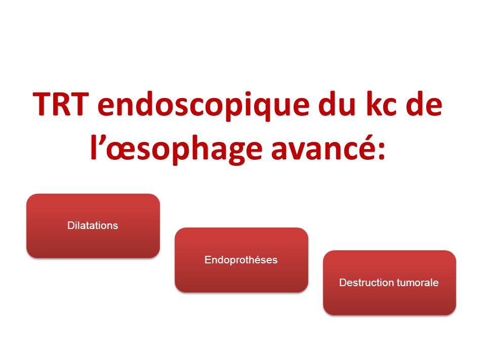 TRT endoscopique du kc de lœsophage avancé: Dilatations Endoprothéses Destruction tumorale