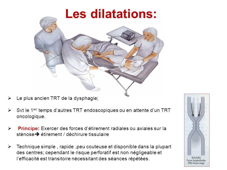Les dilatations: Le plus ancien TRT de la dysphagie; Svt le 1 ier temps dautres TRT endoscopiques ou en attente dun TRT oncologique. Principe: Exercer