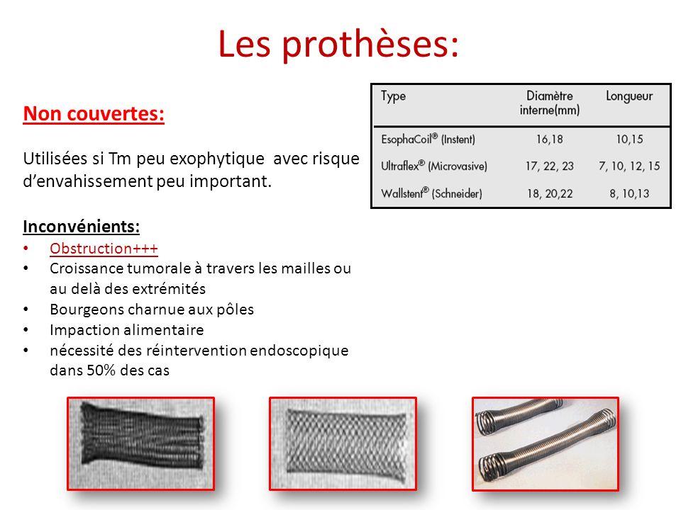Non couvertes: Utilisées si Tm peu exophytique avec risque denvahissement peu important. Inconvénients: Obstruction+++ Croissance tumorale à travers l