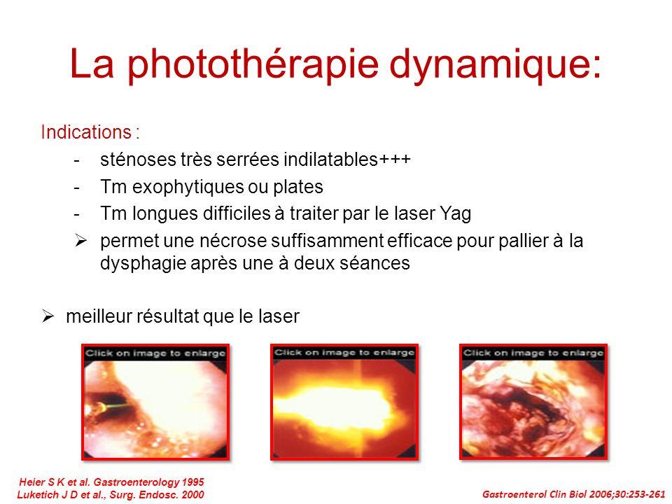 La photothérapie dynamique: Indications : -sténoses très serrées indilatables+++ -Tm exophytiques ou plates -Tm longues difficiles à traiter par le la