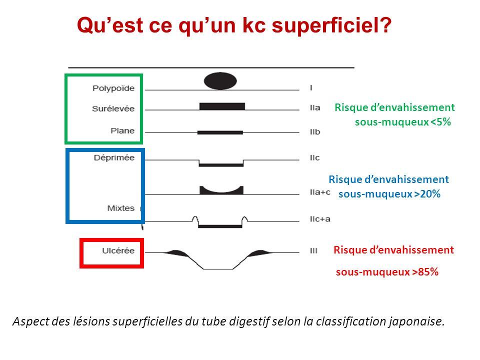 Photothérapie Dynamique matériel: Appareil utilisé : un générateur Sonde de diffusion cylindrique à usage unique passée à travers le canal opérateur, de taille variable