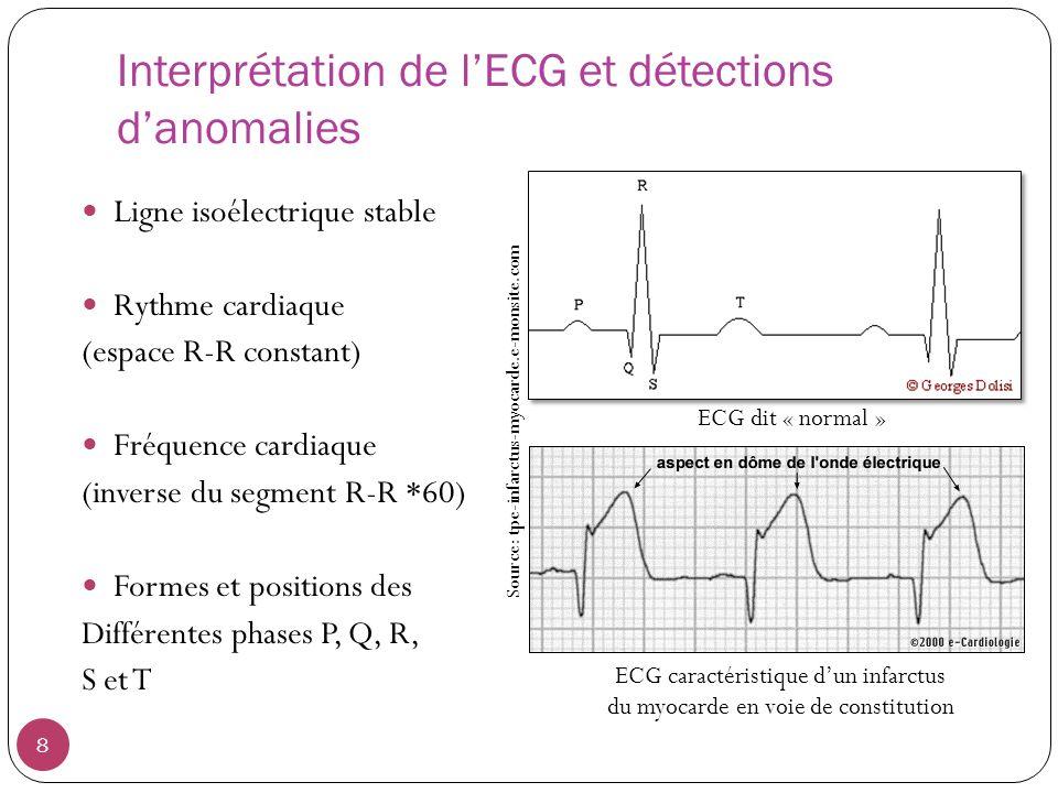 Interprétation de lECG et détections danomalies Ligne isoélectrique stable Rythme cardiaque (espace R-R constant) Fréquence cardiaque (inverse du segment R-R *60) Formes et positions des Différentes phases P, Q, R, S et T 8 ECG dit « normal » ECG caractéristique dun infarctus du myocarde en voie de constitution Source: tpe-infarctus-myocarde.e-monsite.com
