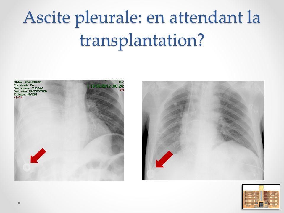 Ascite pleurale: en attendant la transplantation?