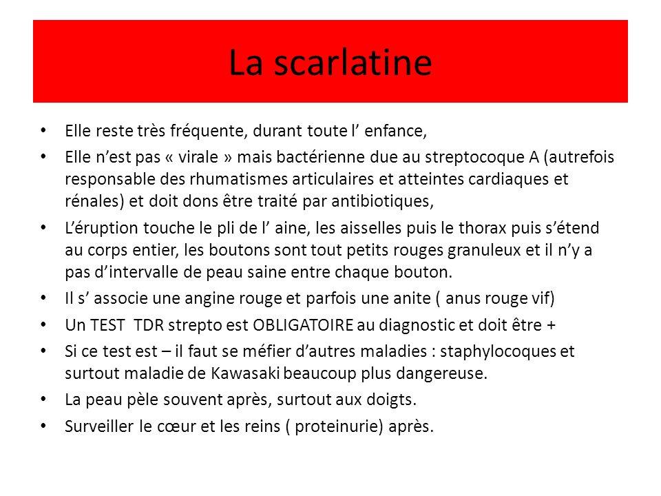 La scarlatine Elle reste très fréquente, durant toute l enfance, Elle nest pas « virale » mais bactérienne due au streptocoque A (autrefois responsabl