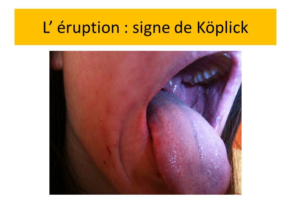 L éruption : signe de Köplick