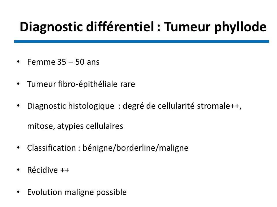 Diagnostic différentiel : Tumeur phyllode Femme 35 – 50 ans Tumeur fibro-épithéliale rare Diagnostic histologique : degré de cellularité stromale++, m