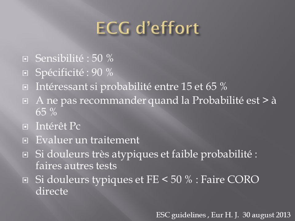 Sensibilité : 50 % Spécificité : 90 % Intéressant si probabilité entre 15 et 65 % A ne pas recommander quand la Probabilité est > à 65 % Intérêt Pc Ev