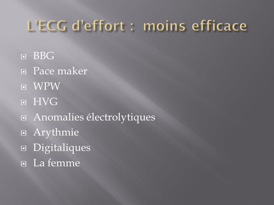 BBG Pace maker WPW HVG Anomalies électrolytiques Arythmie Digitaliques La femme