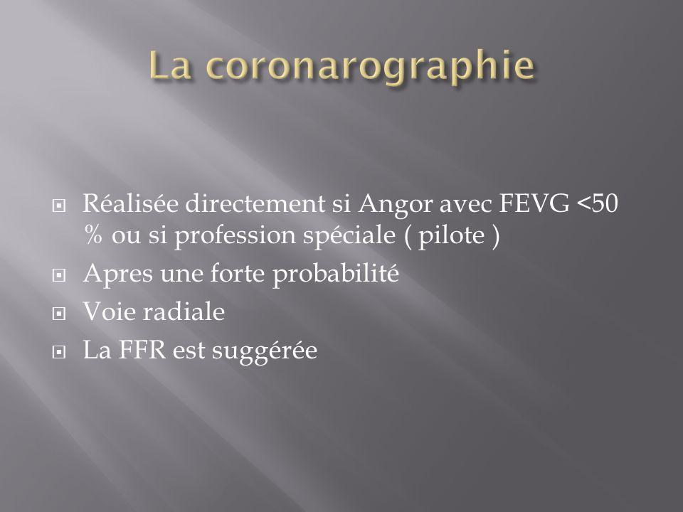 Réalisée directement si Angor avec FEVG <50 % ou si profession spéciale ( pilote ) Apres une forte probabilité Voie radiale La FFR est suggérée