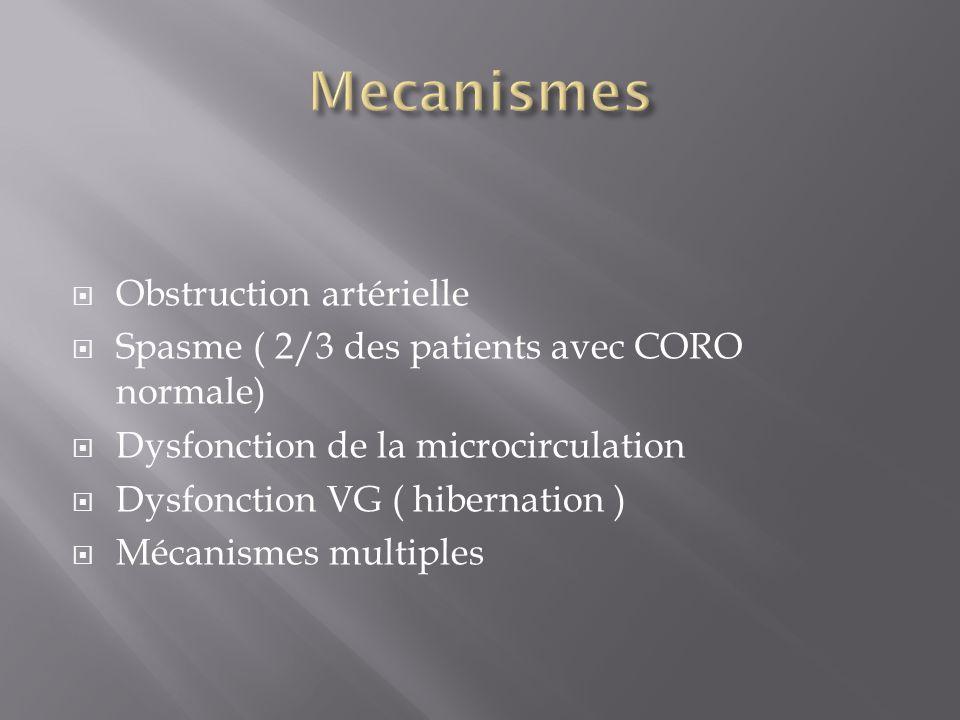 Obstruction artérielle Spasme ( 2/3 des patients avec CORO normale) Dysfonction de la microcirculation Dysfonction VG ( hibernation ) Mécanismes multi