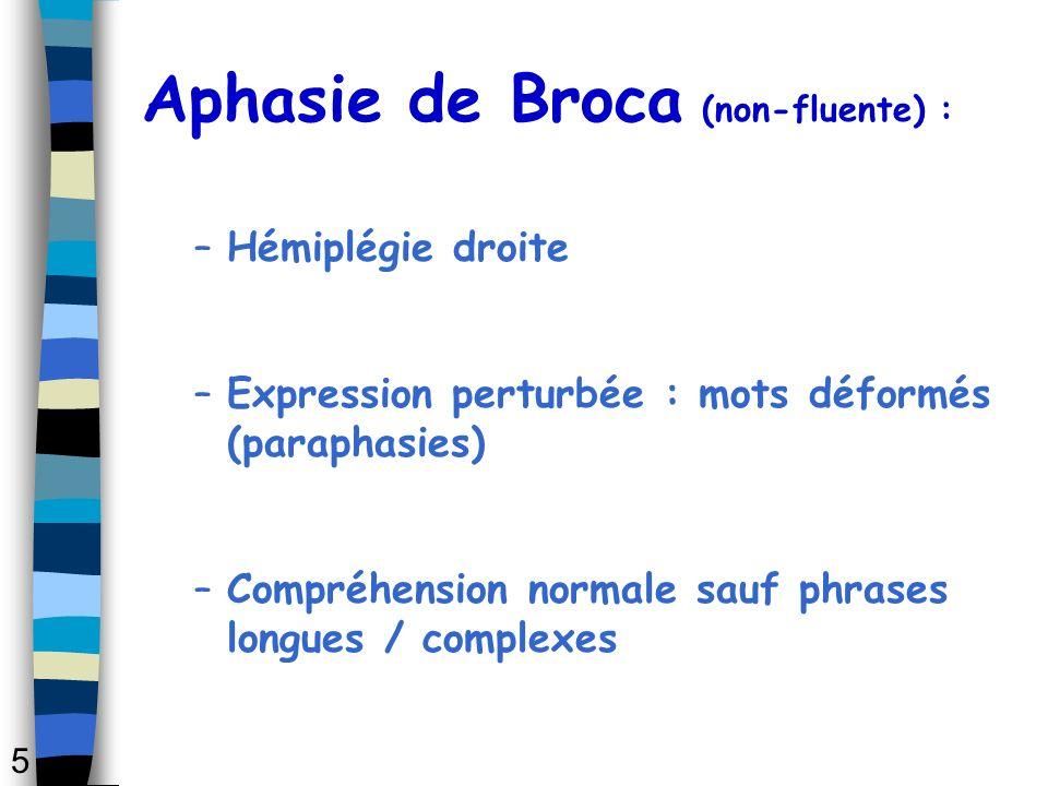 Aphasie de Broca (non-fluente) : –Hémiplégie droite –Expression perturbée : mots déformés (paraphasies) –Compréhension normale sauf phrases longues /