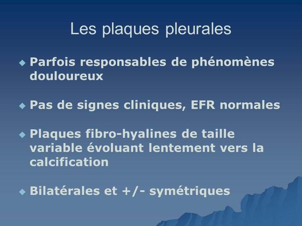 Les plaques pleurales Parfois responsables de phénomènes douloureux Pas de signes cliniques, EFR normales Plaques fibro-hyalines de taille variable év