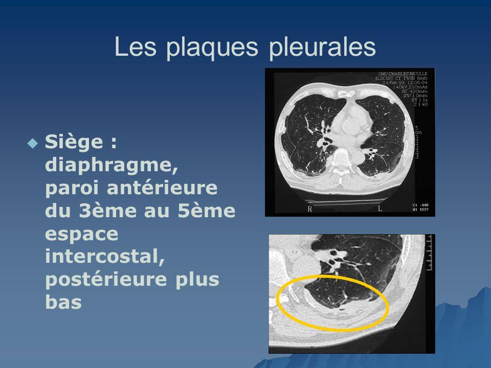 Les plaques pleurales Siège : diaphragme, paroi antérieure du 3ème au 5ème espace intercostal, postérieure plus bas
