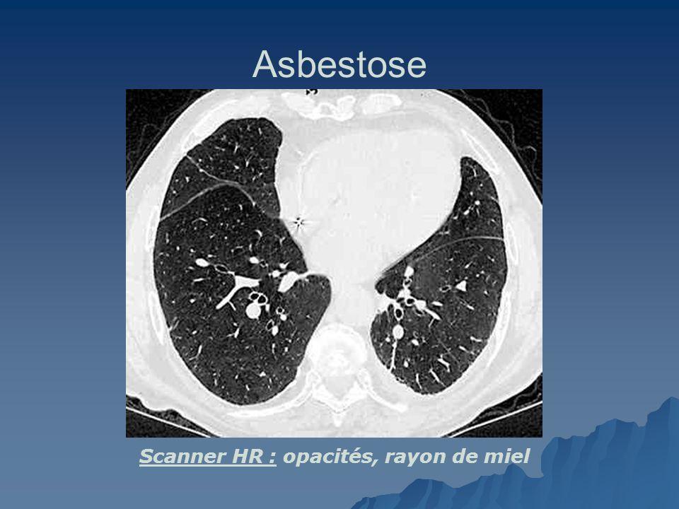 Asbestose Scanner HR : opacités, rayon de miel