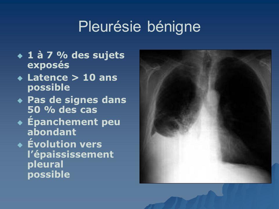 Pleurésie bénigne 1 à 7 % des sujets exposés Latence > 10 ans possible Pas de signes dans 50 % des cas Épanchement peu abondant Évolution vers lépaiss