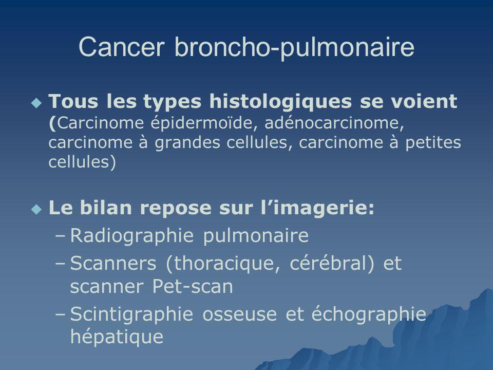 Cancer broncho-pulmonaire Tous les types histologiques se voient (Carcinome épidermoïde, adénocarcinome, carcinome à grandes cellules, carcinome à pet