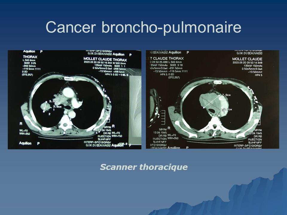 Cancer broncho-pulmonaire Scanner thoracique