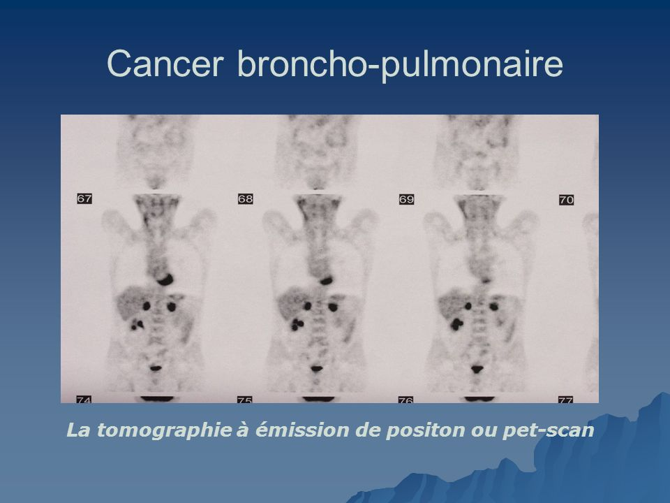 Cancer broncho-pulmonaire La tomographie à émission de positon ou pet-scan