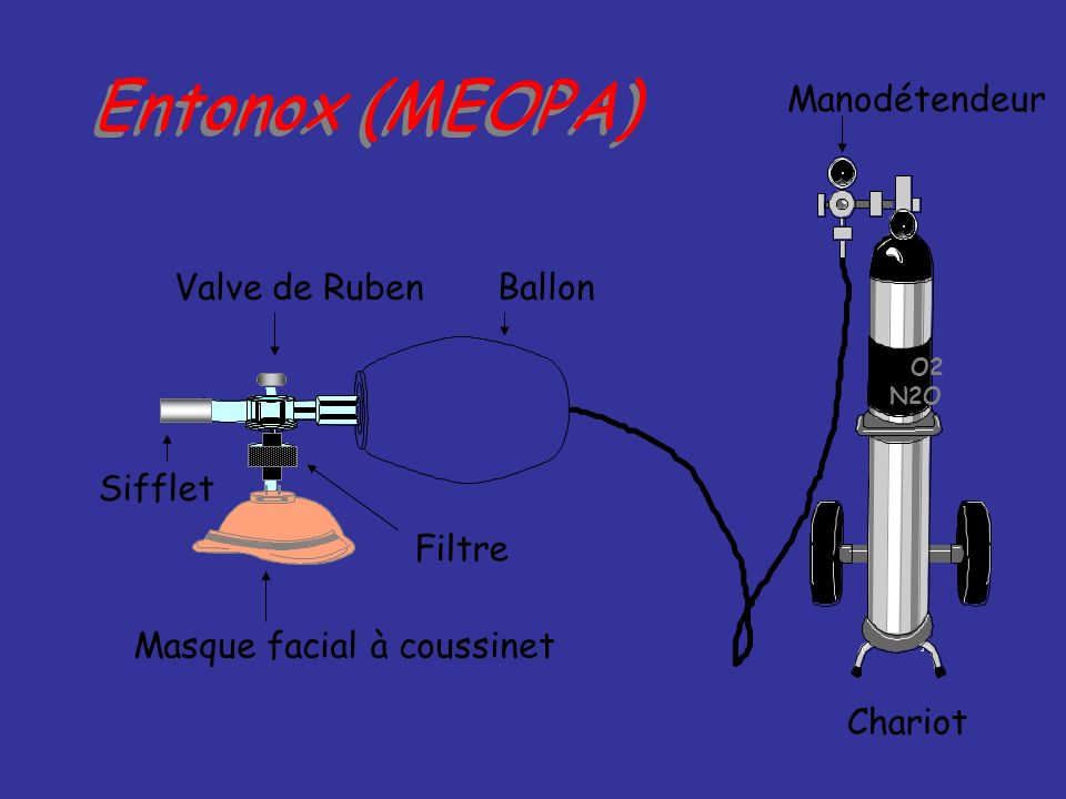 Entonox (MEOPA) Valve de Ruben Ballon Sifflet Masque facial à coussinet Manodétendeur Chariot Filtre