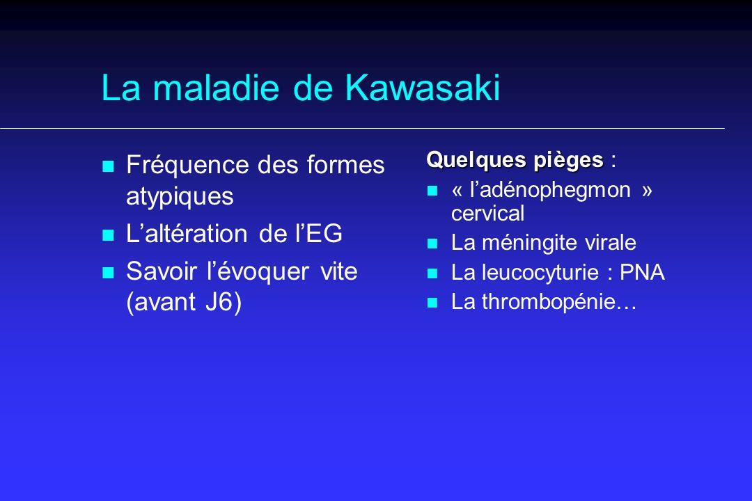 La maladie de Kawasaki n n Fréquence des formes atypiques n n Laltération de lEG n n Savoir lévoquer vite (avant J6) Quelques pièges Quelques pièges : n n « ladénophegmon » cervical n n La méningite virale n n La leucocyturie : PNA n n La thrombopénie…