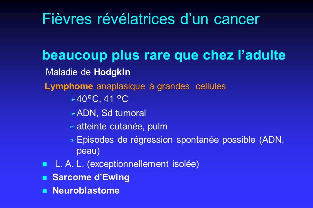 Fièvres révélatrices dun cancer beaucoup plus rare que chez ladulte Maladie de Hodgkin Lymphome anaplasique à grandes cellules F 40°C, 41 °C F ADN, Sd tumoral F atteinte cutanée, pulm F Episodes de régression spontanée possible (ADN, peau) n L.