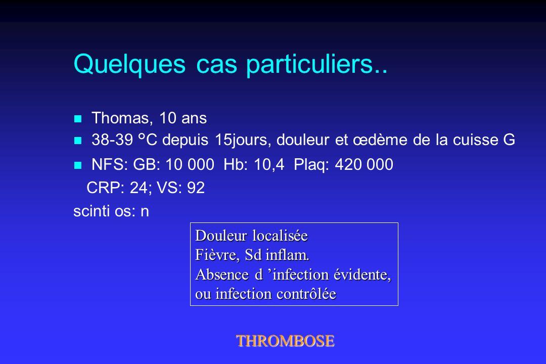 Quelques cas particuliers.. n Thomas, 10 ans n 38-39 °C depuis 15jours, douleur et œdème de la cuisse G n NFS: GB: 10 000 Hb: 10,4 Plaq: 420 000 CRP: