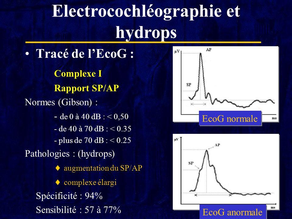 Tracé de lEcoG : Complexe I Rapport SP/AP Normes (Gibson) : - de 0 à 40 dB : < 0,50 - de 40 à 70 dB : < 0.35 - plus de 70 dB : < 0.25 Pathologies : (h