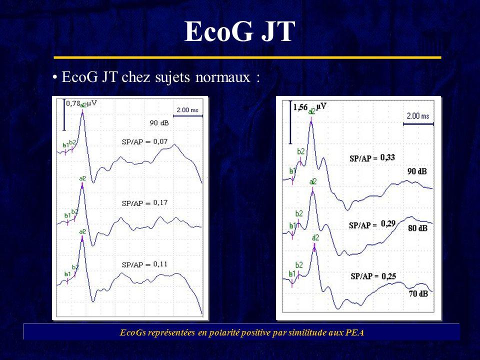 EcoG JT EcoG JT chez sujets normaux : EcoGs représentées en polarité positive par similitude aux PEA