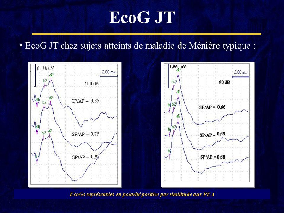 EcoG JT EcoG JT chez sujets atteints de maladie de Ménière typique : EcoGs représentées en polarité positive par similitude aux PEA