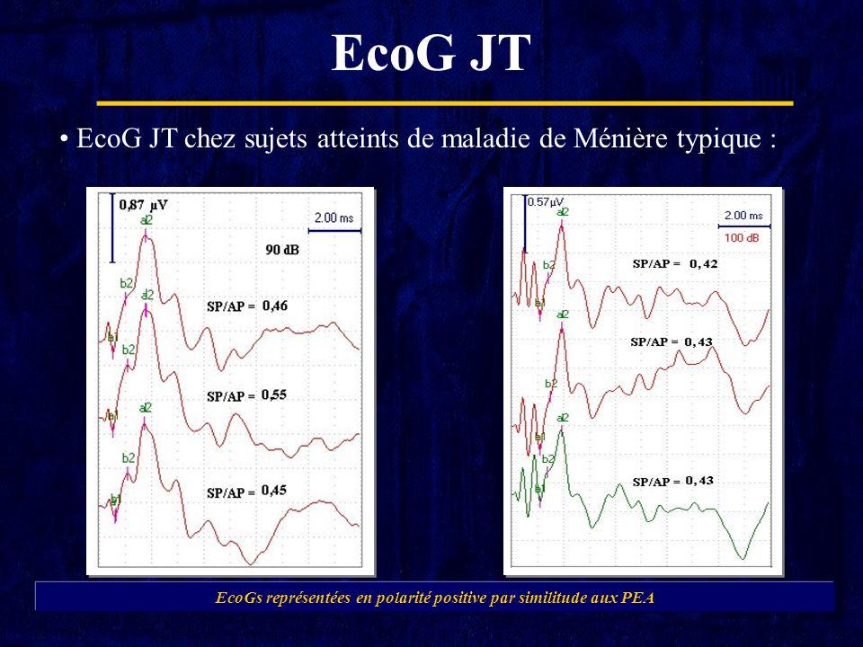EcoG JT EcoGs représentées en polarité positive par similitude aux PEA EcoG JT chez sujets atteints de maladie de Ménière typique :