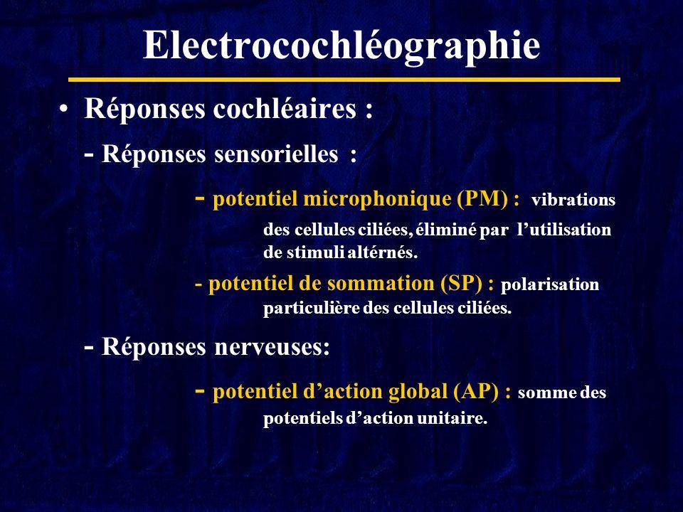 Electrocochléographie Réponses cochléaires : - Réponses sensorielles : - potentiel microphonique (PM) : vibrations des cellules ciliées, éliminé par l