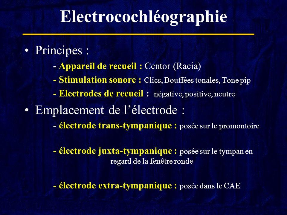 Electrocochléographie Principes : - Appareil de recueil : Centor (Racia) - Stimulation sonore : Clics, Bouffées tonales, Tone pip - Electrodes de recu