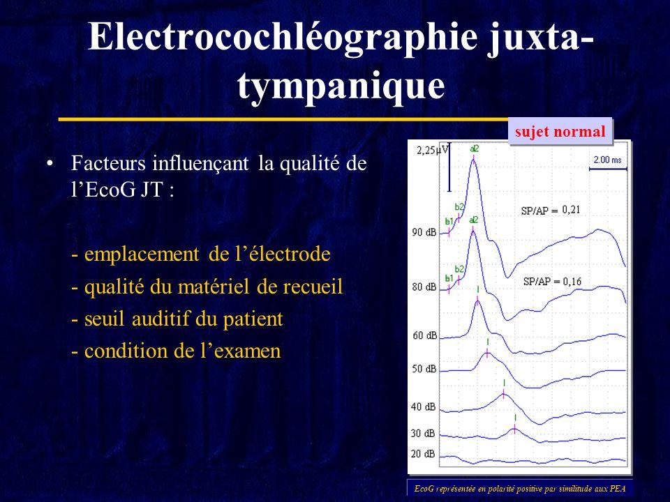 Electrocochléographie juxta- tympanique Facteurs influençant la qualité de lEcoG JT : - emplacement de lélectrode - qualité du matériel de recueil - s