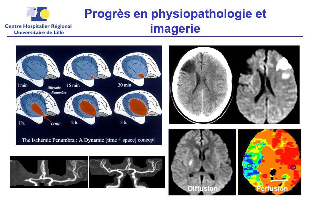Rationnel du traitement en phase aiguë Augmenter le débit sanguin cérébral.