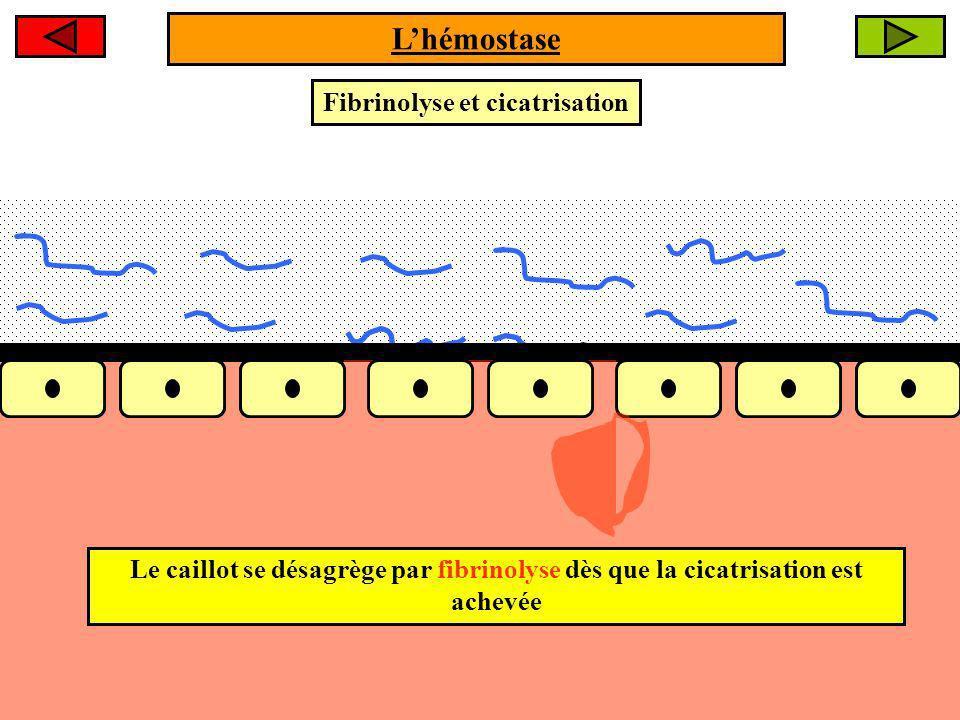 Fibrinolyse et cicatrisation Le caillot se désagrège par fibrinolyse dès que la cicatrisation est achevée Lhémostase