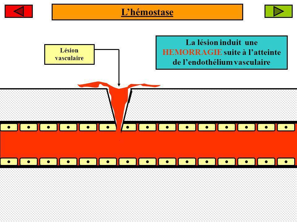 Lésion vasculaire La lésion induit une HEMORRAGIE suite à latteinte de lendothélium vasculaire Lhémostase